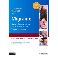 Illustrated Treatment for Migraine Using Acupuncture, Moxibustion and Tuina Massage - C. Chengbin & X. Xiaomin